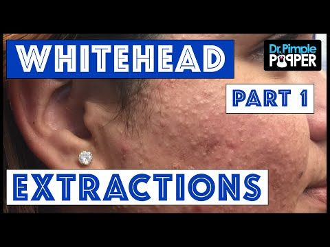 Whitehead Extractions TNTC, Session 3 Part 1 of 2 - YouTube | Dr