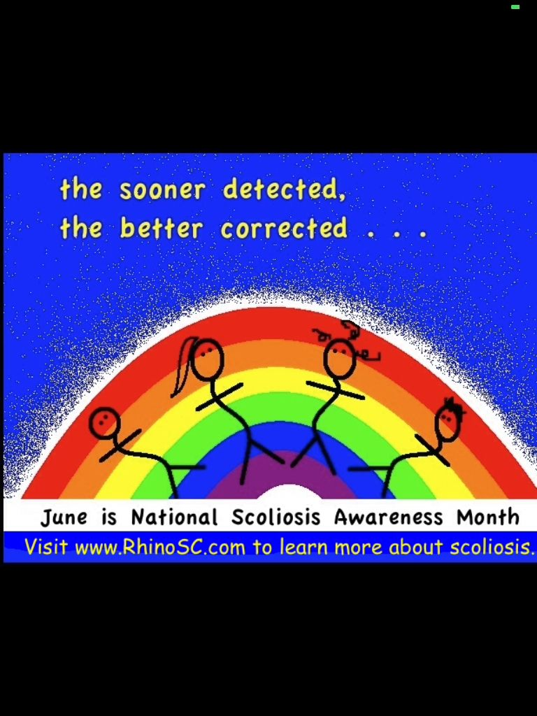 Park Art|My WordPress Blog_Is Scoliosis A Disability In Us