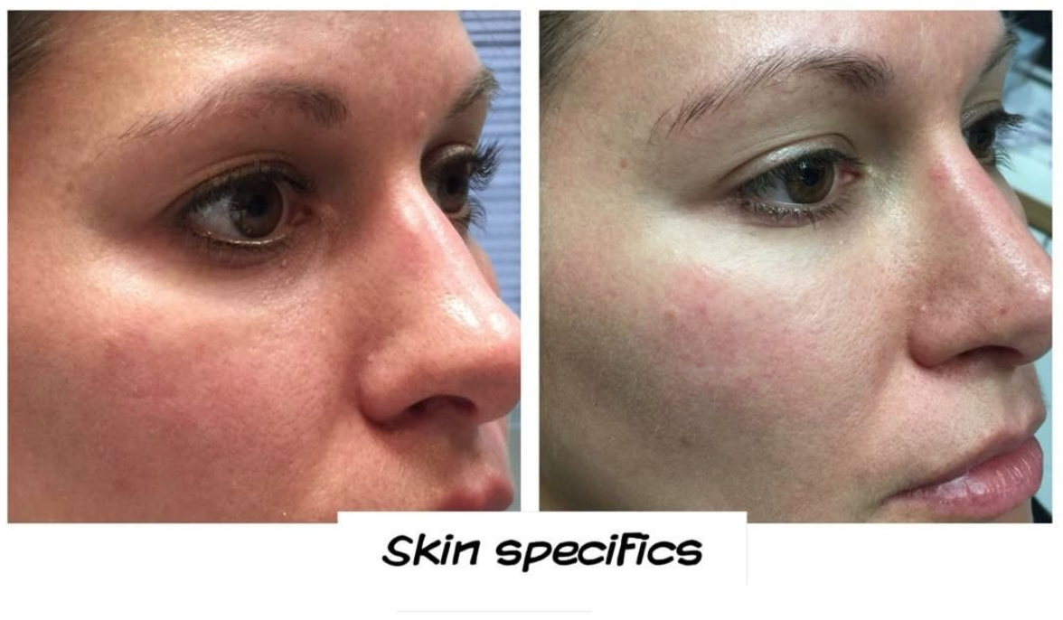 Tear trough/mid face and malar groove correction juvederm