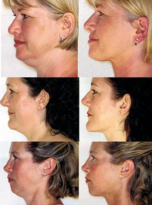Neck wrinkles exercises