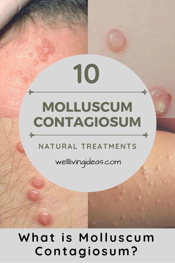 10 Natural Treatments And Home Remedies For Molluscum Contagiosum
