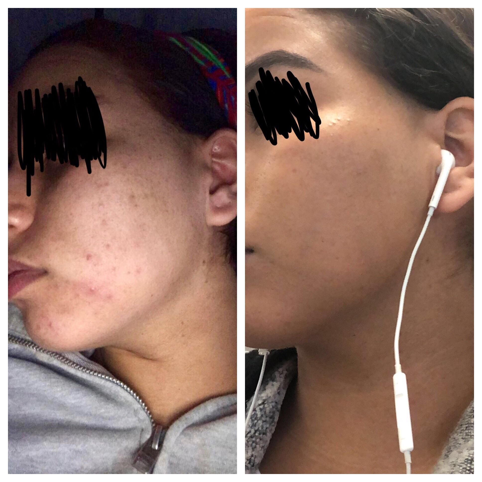 B Amp A Only 3 Months On Minocycline Epiduo Forte And Good Skin Care Routine Best Skin Care Routine Good Skin Skin Care Routine