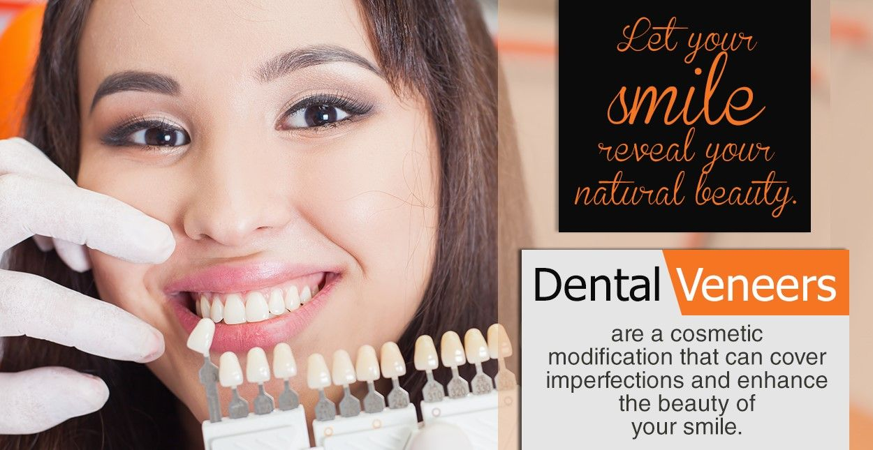 Dental veneers are a cosmetic modification that can cover