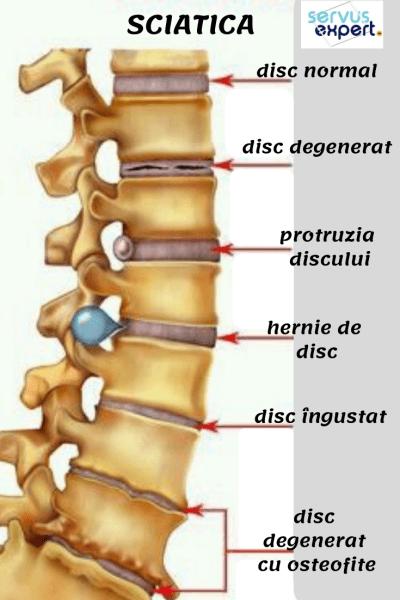 unde este tratată coloana vertebrală și articulațiile