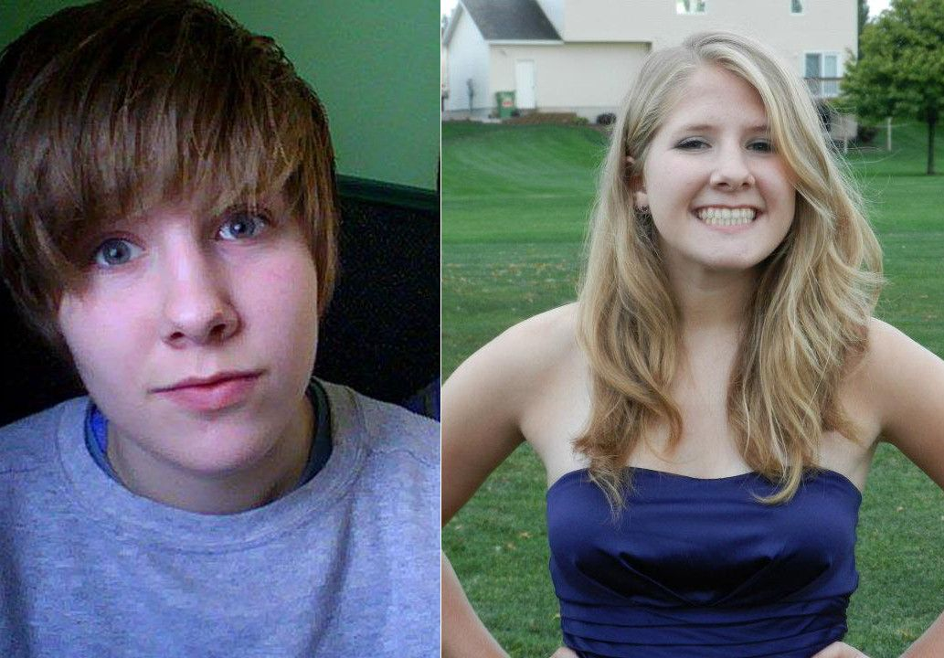 Mtf 1 Year Hrt Before And After How Am I Doing -2435