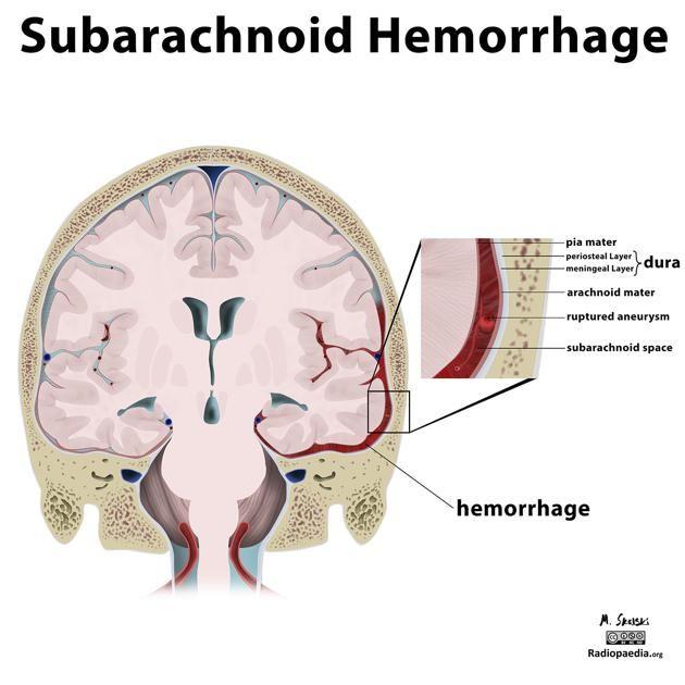Read More Here Http Radiopaedia Org Articles Subarachnoid