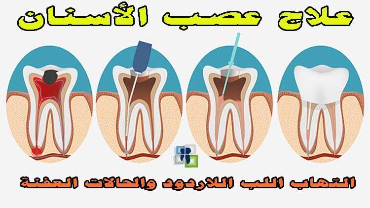علاج عصب الأسنان العفنة التهاب اللب اللاردود خاص لأطباء الأسنان In 2021 Treatment