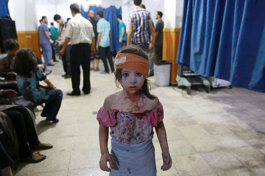 A wounded Syrian girl stands in a makeshift hospital in the rebel-held area of Douma, east of Syria's capital of Damascus, following shelling and air raids by Syrian government forces on August 22, 2015. At least 20 civilians were killed, and another 200 wounded or trapped in Douma, a monitoring group said, just six days after regime airstrikes killed more than 100 people and sparked international condemnation of one of the bloodiest government attacks in Syria's war. #