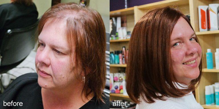 Hair loss treatment for women in minnetonka mn thinning hair hair loss treatment for women in minnetonka mn thinning hair pmusecretfo Images