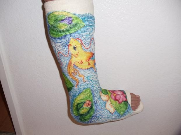 Broken Bone Cast Sticker Craft - 15 brilliantly decorated casts well worth broken bones