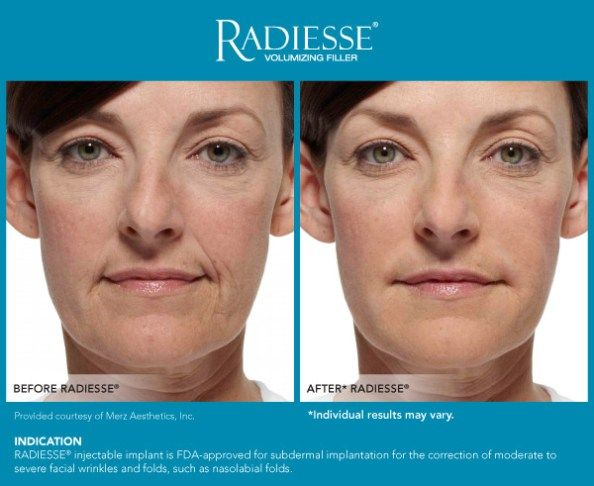 What is Radiesse? Smooth gel filler softens fine lines and