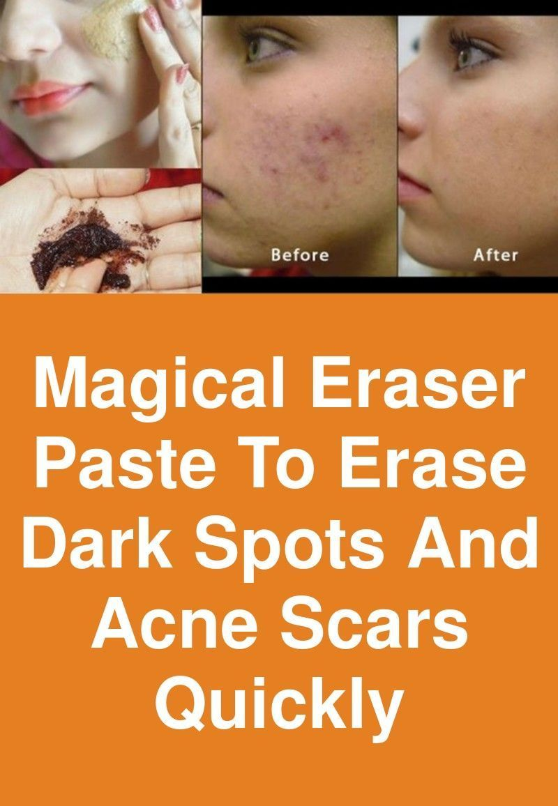 Agespotsremoval Age Spots Removal In 2019 Acne Scars Dark