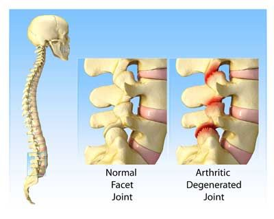 Facet Syndrome | Facet Joint Syndrome | Pinterest | More Sciatic ...