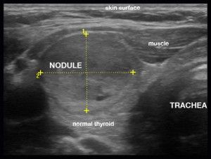 Large Thyroid Nodule Thyroid Ultrasound Thyroid Nodules