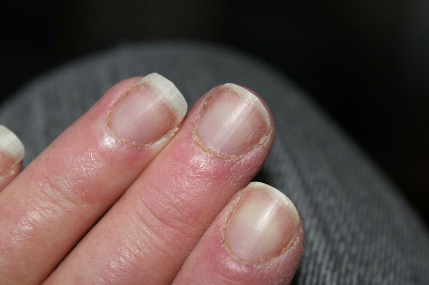 Use Tea Tree Oil for dry Cuticles | NAILS | Pinterest | Dry cuticles ...