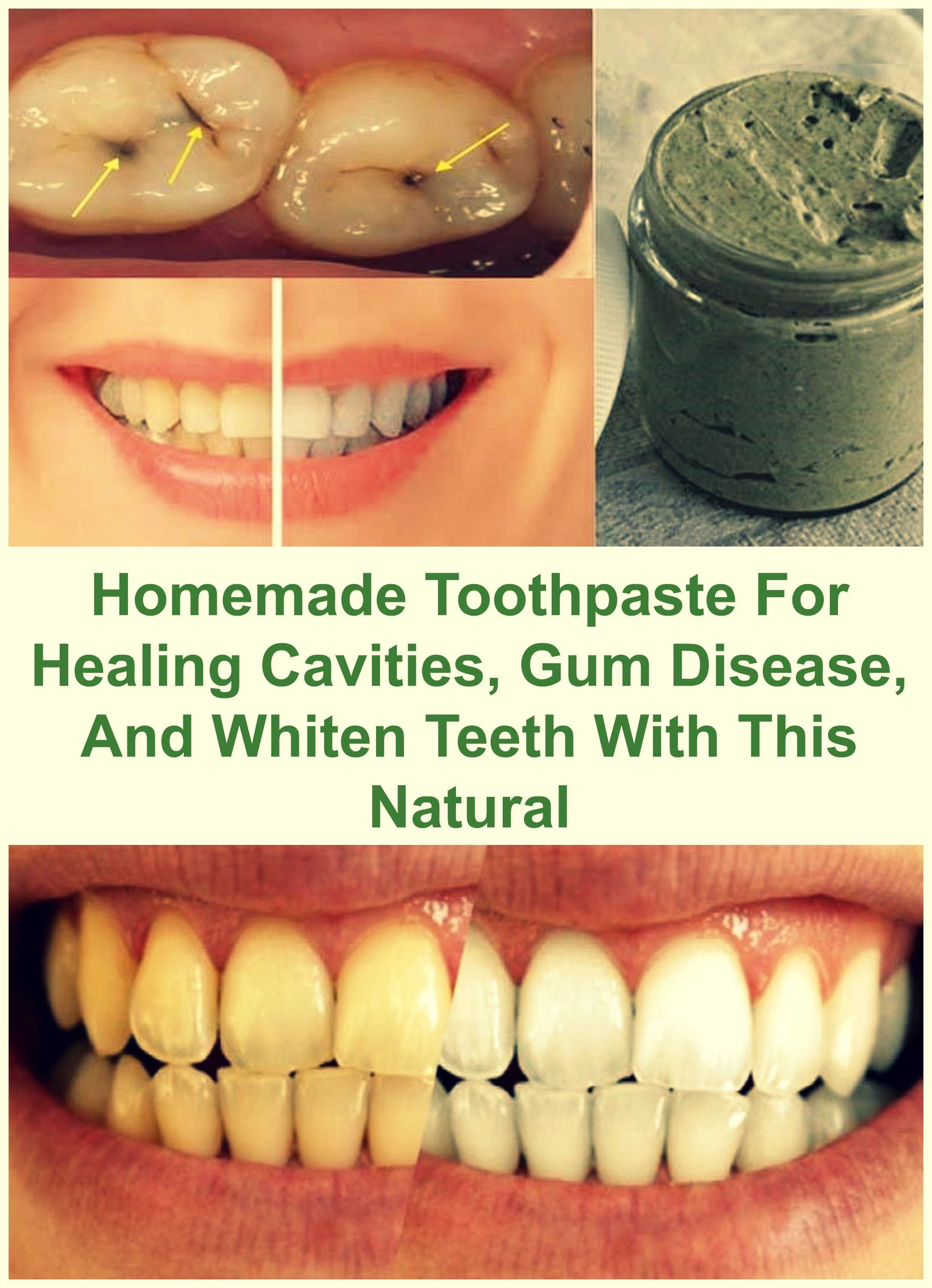Heal Cavities Gum Disease And Whiten Teeth With This Natural