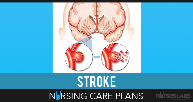 Cerebrovascular Accident Stroke Nursing Care Plans  Nursing