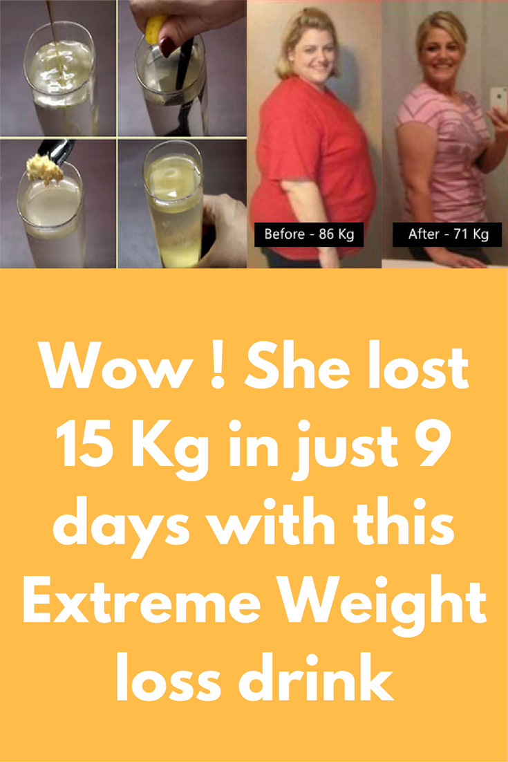 Medi weight loss advantage