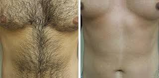 Laser Hair Removal is for men too