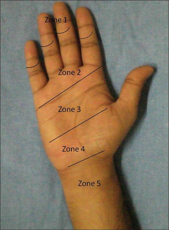 flexor tendon zones of the hand google search hands exercises