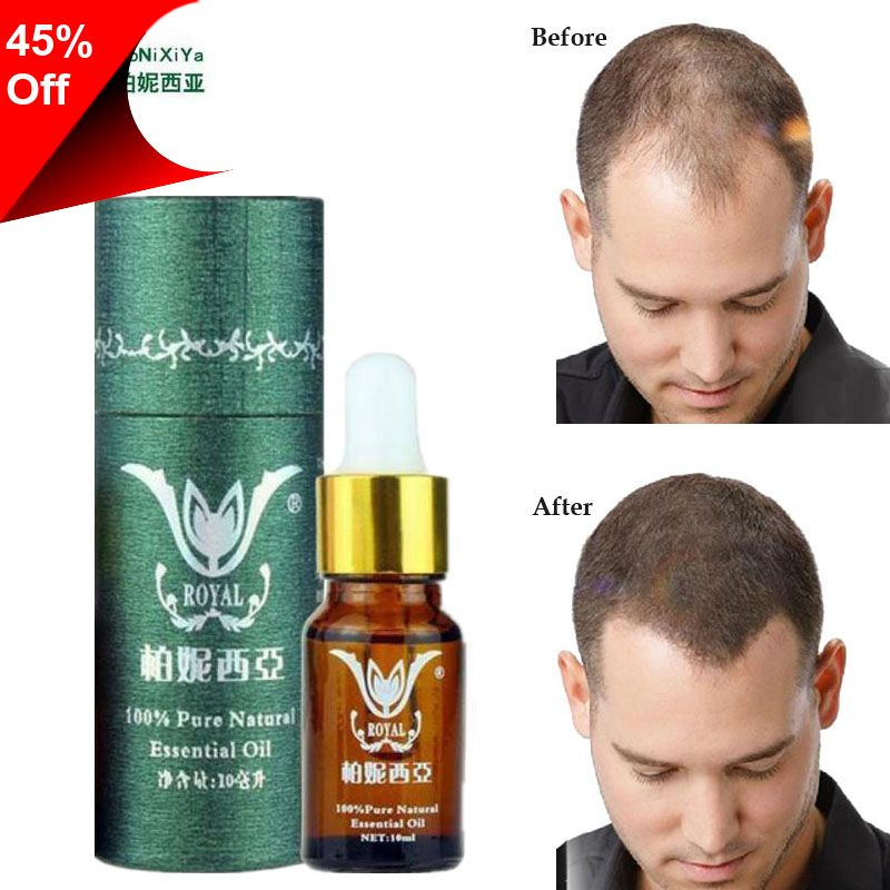 Only 6 33 Hair Growth Essence Professional Salon Hairstyles Keratin Hair Care Styling Products Anti Hair Lo Nourishing Hair Hair Extension Care Keratin Hair