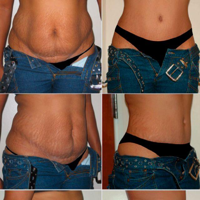 ce9ce1fa6d Tummy tuck along with a breast augmentation