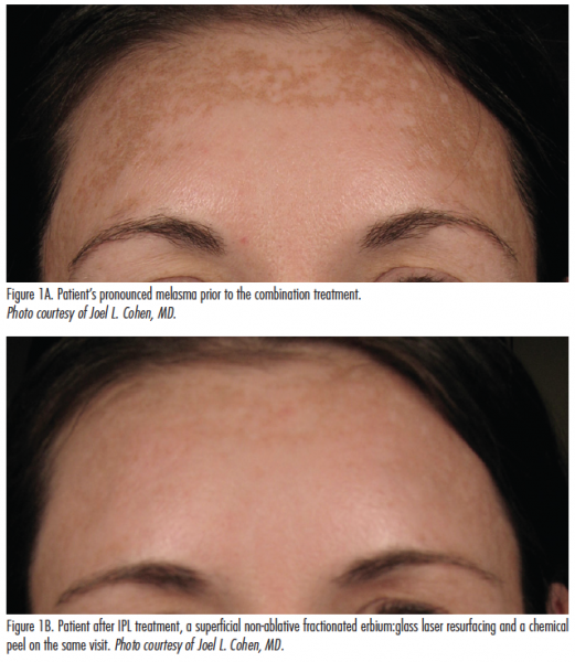 Start Low and Go Slow (conservative application): Fraxel Dual's new 1927 wavelength laser & Q-switched YAG laser.................The key to clearing melasma, is avoiding high-energy laser treatment such as non-ablative or ablative fractional lasers, IPL or high-energy, and the Q-switched laser treatment, unless the laser they use is a low-fluence such as the 1064-nm Q-switched Nd:YAG (Candela TriVantage).