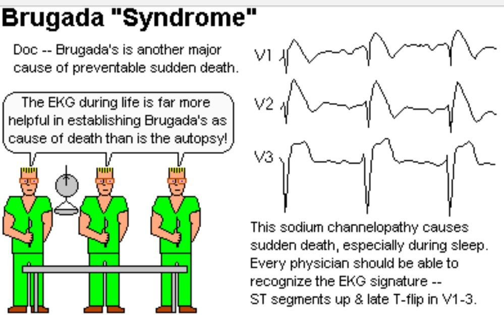 brugada syndrome sudden cardiac death Brugada syndrome is a genetic disease that is characterised by abnormal electrocardiogram findings, such as pseudo-right bundle branch block and st elevations, and an increased risk of sudden cardiac death.