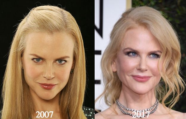 Nicole Kidman Plastic Surgery Before And After Celebrity