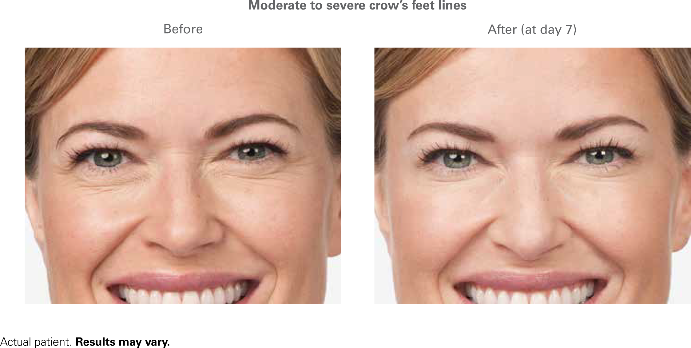 botox before and after - moderate crows feet  What a