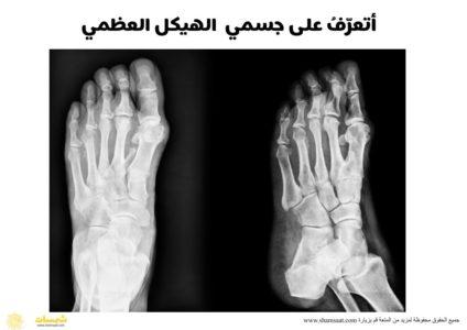جسم الانسان الهيكل العظمي صور اشعة يد رجل فوتوغرافية Holding Hands Hands