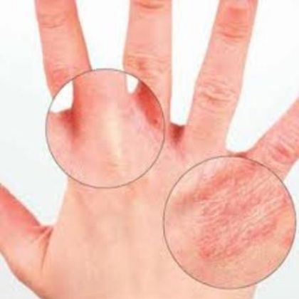 Six Effective Home Remedies For Dry Hands Dry Skin Remedies Aromatherapy Skin Care Extremely Dry Skin