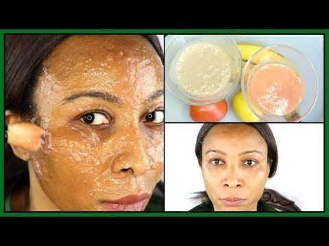 Photo of HOW TO GET RID OF DRY DULL SKIN/BANANA TOMATO LEMON 3 IN ONE FACIAL MASK/ SCRUB|Khichi Beauty
