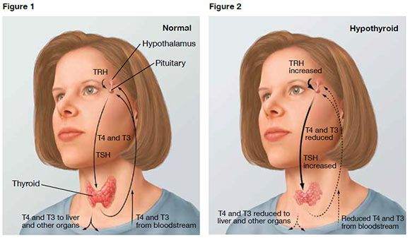 Thyroid Nodules And Goiter Signs And Symptoms *** Click. Smoking Cessation Counselor Best Chef School. Viejas Concert Schedule Ms Nurse Practitioner. Community Colleges In Toledo Ohio. Ortho Novum Birth Control Learning Tree Itil. Client Management Software Dui And Insurance. Advertising For Dentists Tattoo Removal Austin. Interior Designing Course In Bangalore. Massage Therapy Chicago Virtual Office In Usa