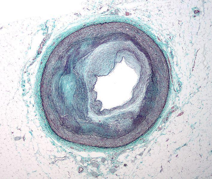 FileRCA atherosclerosis.jpg