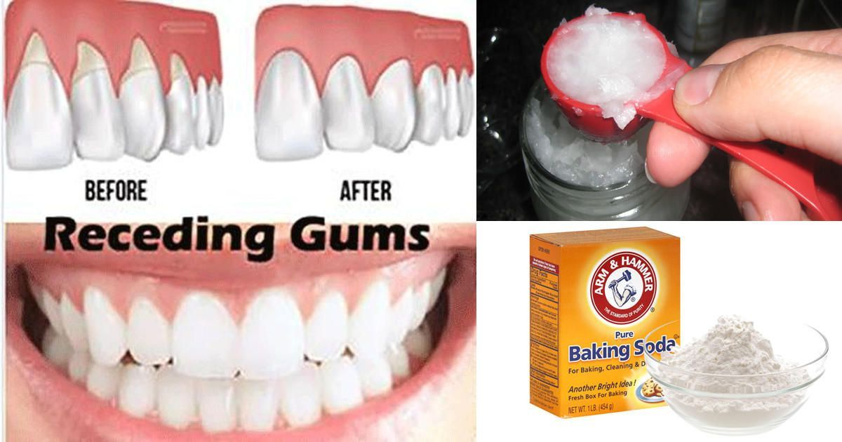 6 natural ways to stop and heal receding gums before its