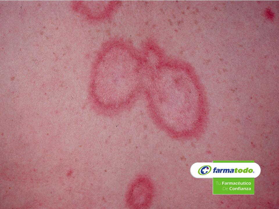 FARMACIA ¿Qué es el lupus? GRUPO FARMATODO El lupus eritematoso es una enfermedad inflamatoria crónica de origen autoinmunitario de causa desconocida, esto es que el sistema inmune del paciente pierde la capacidad de identificar las bacterias, virus y otros enemigos externos que entran en el organismo, y confunde a las células y tejidos sanos como invasores, produciendo exagerados anticuerpos que actúan sobre las células en su cuerpo. www.farmatodo.com.mx