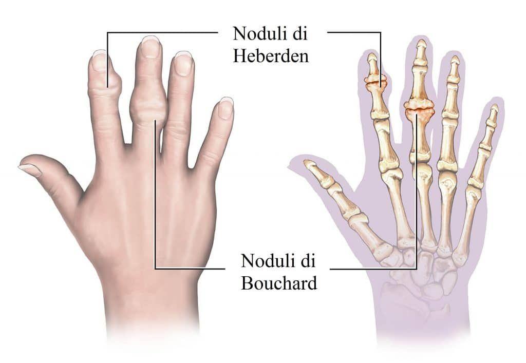 Noduli di Heberden