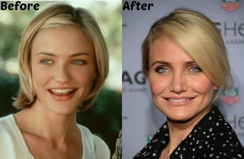 Cameron Diaz Before And After Plastic Surgery