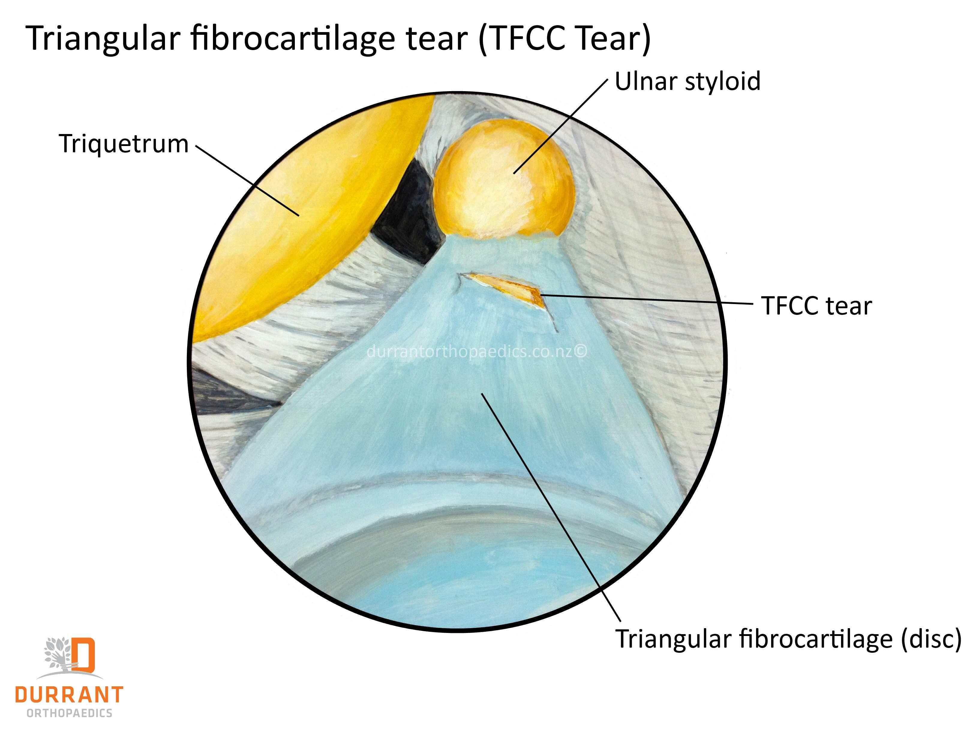 Close Up Of A Tfcc Tears Triangular Fibro Cartilaginous Complex In