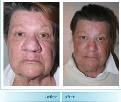 Before And After Images Of A Patient Who Has Undergone Rhinophyma Surgery