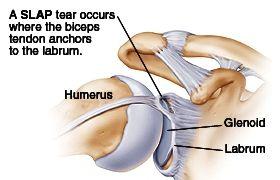 Biceps Disorders Slap Tears The Reading Shoulder Unit