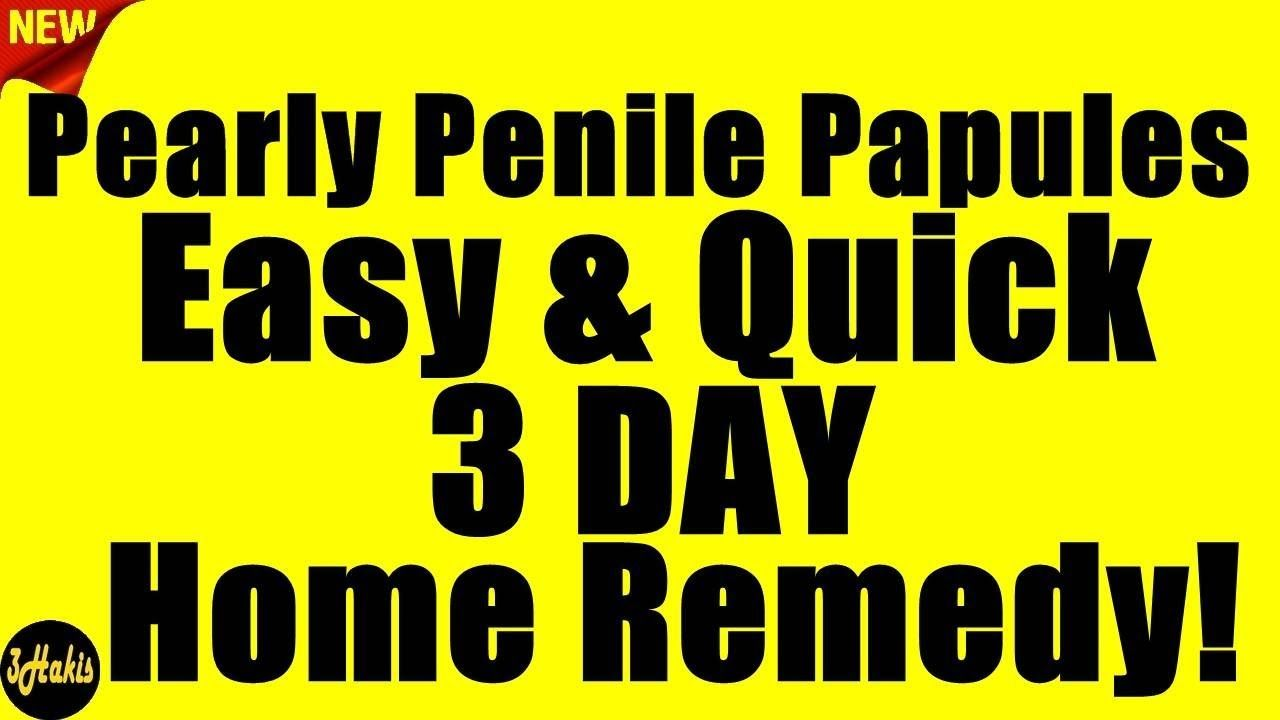 Pin on pearly penile papules