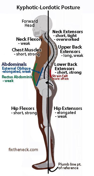KyphoticLordotic Posture   Postural   structural