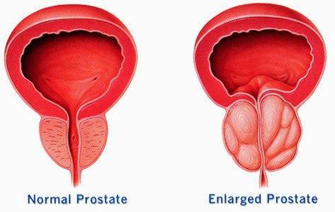 Recepti Narodni Recepti Enlarged Prostate Prostate Health Prostate Massage