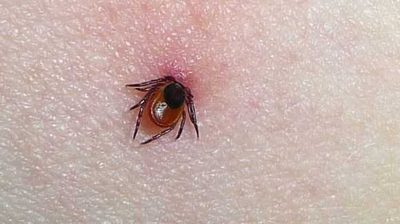 New THL data show 6,000 Lyme disease cases in 2015 [in Finland] - three times previously reported