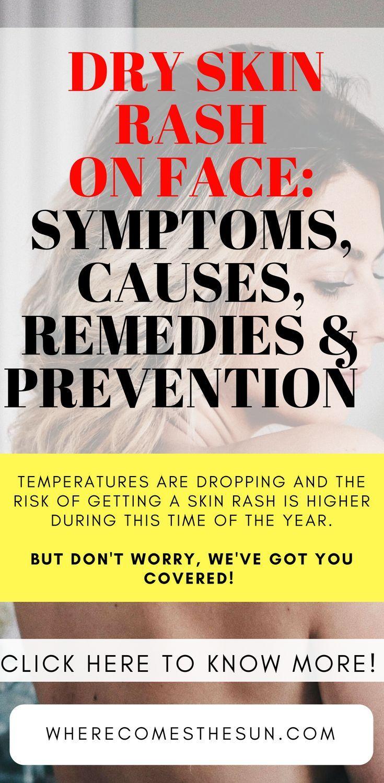 Stress: symptoms, causes, remedies