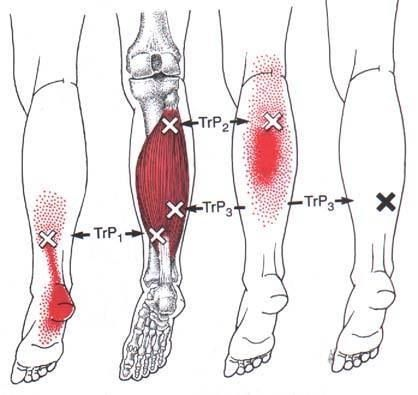 Trigger Points Plantar Fasciitis And Foot Care Pinterest