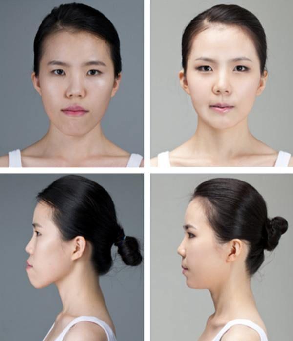 Boy To Girl Plastic Surgery