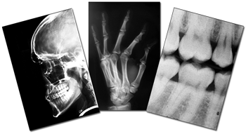 X-Ray Trial Exhibits | Image Scanning West Palm Beach | CopyScan